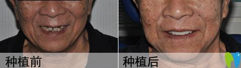 香山口腔种植牙效果对比图