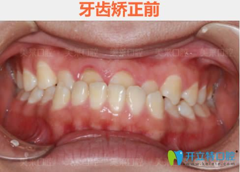 我看过广州美莱和曙光口腔科的价格后,去美莱做了牙齿矫正