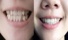 85后虎牙女在苏州美奥口腔花1年多完成隐形牙齿矫正的日记