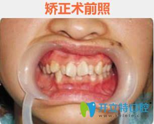 广州德隆齿科做正畸怎么样?28岁顾客牙齿矫正对比照及反馈