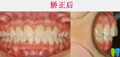 清远牙科哪家好  看中大口腔牙齿矫正真人案例效果对比