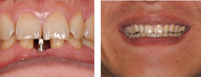 门牙龋齿严重 拔掉后怎么办 来深圳龙普兰特口腔做牙齿种植