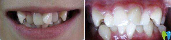 中山大象口腔牙齿矫正前的照片