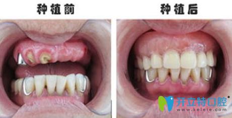 好大夫口腔种植牙前后效果对比图