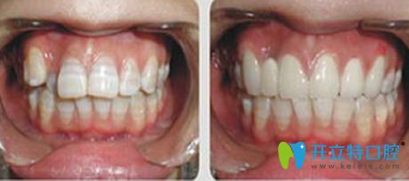 广州好大夫口腔牙齿矫正前后效果对比图