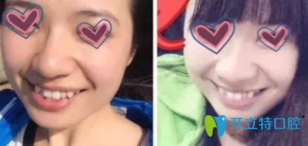 在北京博爱口腔比较了金属和陶瓷矫正方法 选择了隐形矫正