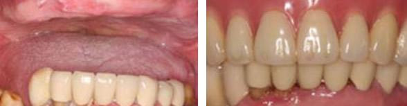 从三张牙齿矫正+种植牙图片 看深圳韦博口腔技术实力怎么样