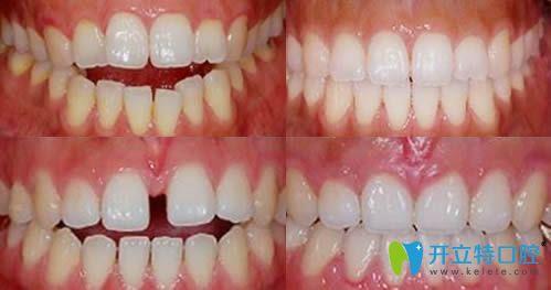深圳宝联齿科牙齿矫正效果对比图