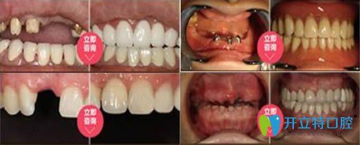 深圳宝联口腔门诊部种植牙效果对比图