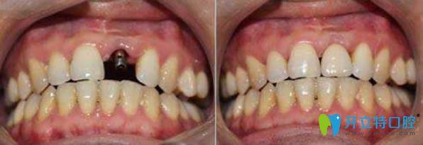 北京瑞泰口腔郭航医生种植牙前后对比效果