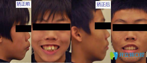 上海尤旦口腔门诊部牙齿矫正案例图