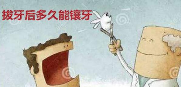 广州番禺瑞德口腔解答拔牙后多久能镶牙 为什么要在2-3月后