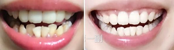 广州哪里做牙齿正畸好 这有一份瑞德口腔隐形矫正效果案例