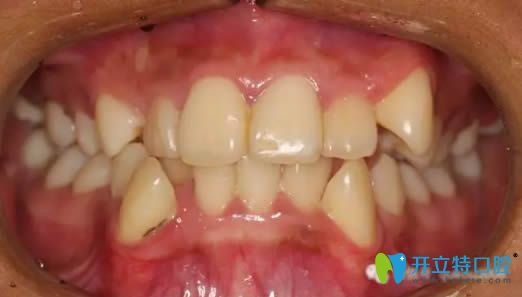 上海康态口腔看牙怎么样?看28岁顾客牙齿矫正对比照及反馈