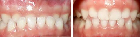 上海美奥口腔给小孩子矫正牙齿怎么样 这有的效果案例