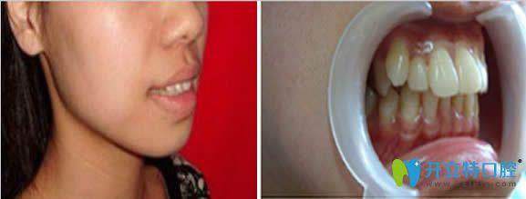 我今年25岁,为了改善龅牙去上海尤旦口腔做了隐形牙齿矫正