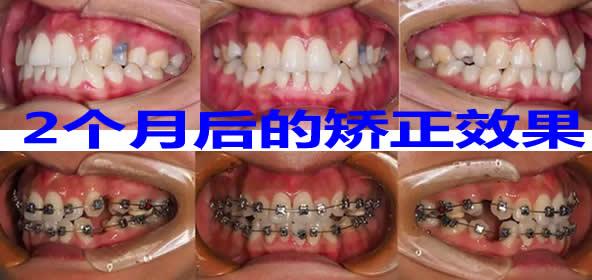 员工亲自体验上海德伦口腔金属托槽矫正牙齿 2个月效果明显
