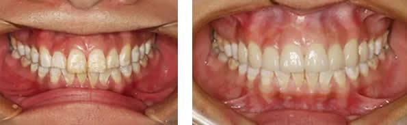 氟斑牙怎么美白 佛山华美口腔瓷贴面修复很管用 但价格稍贵