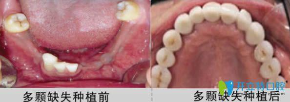 深圳宝联齿科怎么样?看顾客种植牙及牙齿矫正效果的反馈