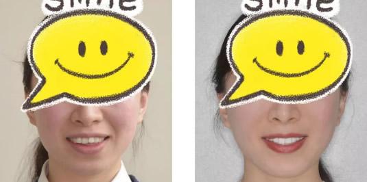 上海美乐口腔矫正牙齿怎么样 25岁正畸案例+前后对比照见证