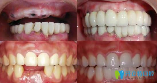 郑州卓 越口腔牙齿种植效果图