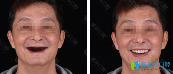 上海维乐口腔种植牙效果案例