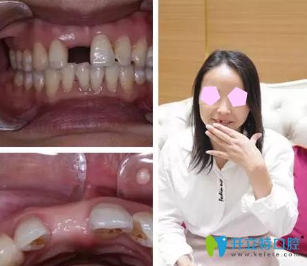 厦门佳美口腔种植牙技术怎么样 即刻种植牙效果图为你揭晓