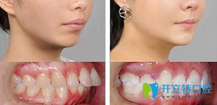 厦门佳美口腔黄建钦院长牙齿矫正案例对比图