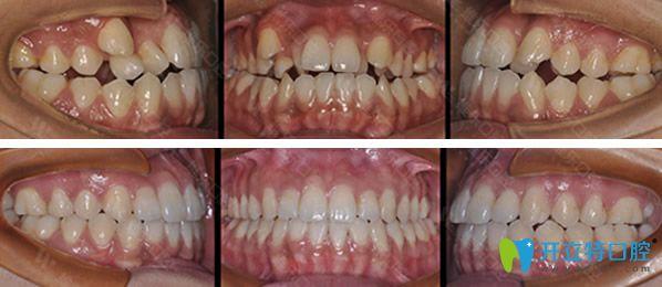 维乐口腔因金属托槽矫正牙齿前后效果对比照