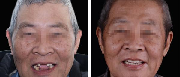 西市首富二爷的假牙换成上海维乐口腔种植牙 效果会怎样