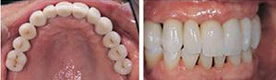 趁重庆维乐口腔价格优惠 带半口牙缺失的妈妈做了种植牙