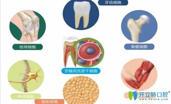 美國再生牙臨床 美國hiossen種植牙