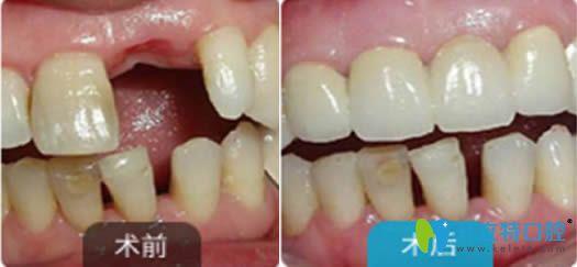 上海永华口腔单颗牙种植效果图