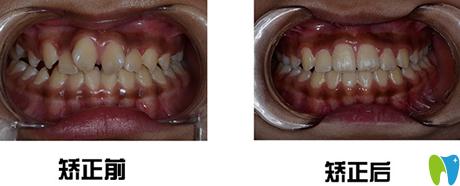 西安时代口腔牙齿矫正前后效果对比图