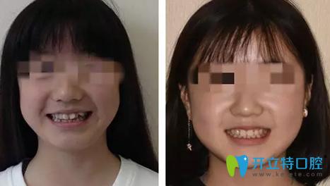 西安看口腔哪家好  时代口腔种植牙及牙齿矫正案例曝光
