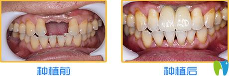西安时代口腔种植牙案例效果图