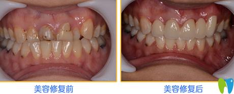 时代口腔前牙美容修复效果对比图