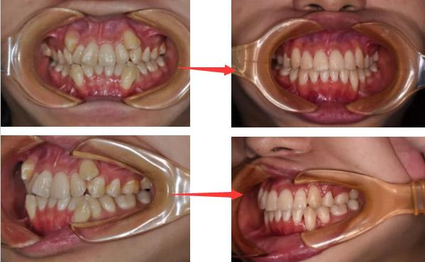 30多岁还能矫正牙齿吗要多久 看我在郑州拜博口腔正畸过程