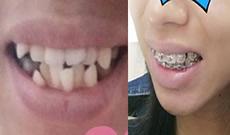 分享我在淮安牙知道口腔花1万多做金属托槽牙齿矫的经历