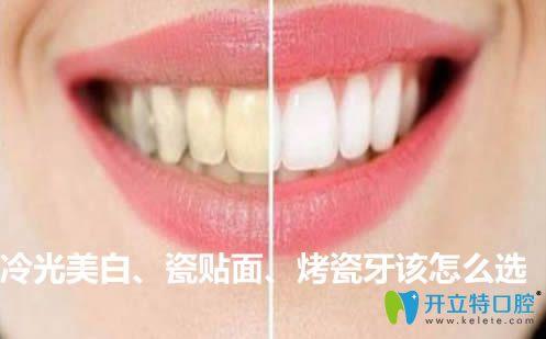 冷光美白和牙齿瓷贴面及烤瓷牙该怎么选?来看价格是多少钱