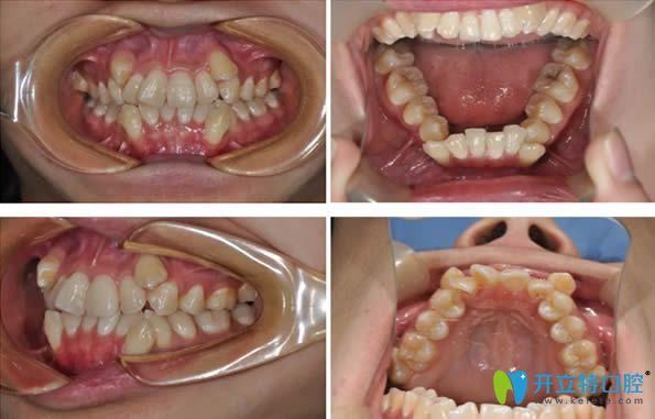 26岁的我,在郑州拜博口腔花1万多元做了自锁托槽牙齿矫正