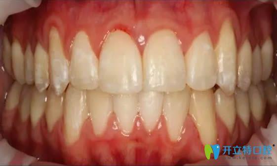 正雅隐形牙齿矫正19个月后效果