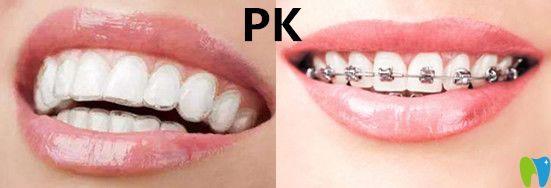 自锁牙套和普通牙套_牙齿矫正器多少钱_牙齿矫正器种类_牙齿矫正器哪个牌子好_牙齿 ...