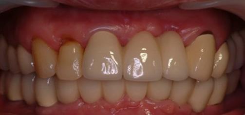 65岁王大妈多颗牙缺失在北京永康口腔种植牙齿后心得体会