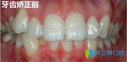 在上海马泷齿科做隐适美牙齿矫正12个月啦,来说下我的感受