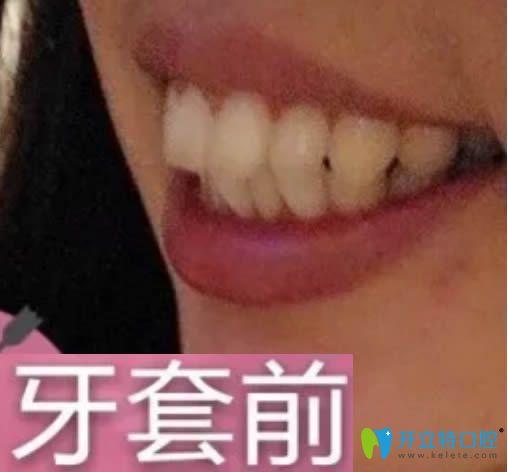 时代天使矫正的效果好吗?看28岁顾客的牙齿正畸前后对比照