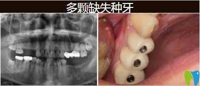 南京美奥口腔种植牙效果图