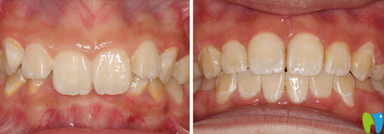 在杭州艾维口腔做深覆颌矫正治疗前后对比案例