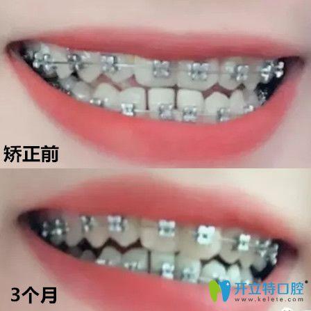 拜博口腔地包天矫正前后牙齿变化对比图