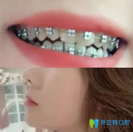 在杭州拜博口腔做地包天矫正3个月牙齿图片